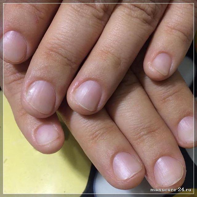 Как распознать грибок ногтей: основные симптомы
