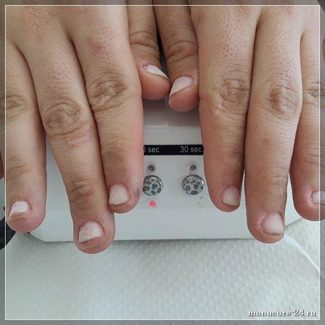 Последствия вредных привычек: перестаем грызть ногти
